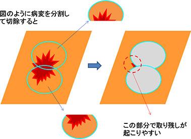 実際の切除方法(内視鏡的粘膜下層切除術:ESD)