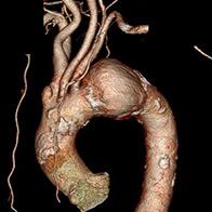 胸部大動脈瘤