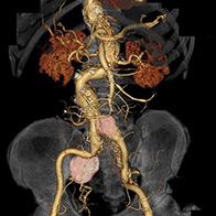 腸骨動脈瘤