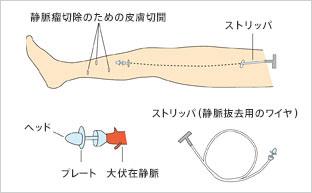 ストリッピング手術(静脈抜去術)