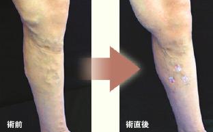 静脈瘤レーザー血管内治療