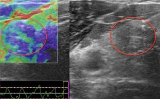 甲状腺腫瘍の硬さをみるエラストグラフィ画像