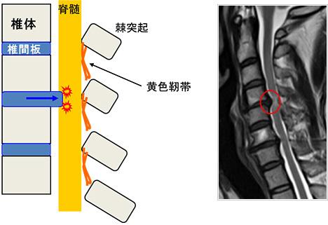 頸椎椎間板ヘルニア、頸椎症