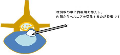 経皮的腰椎椎間板ヘルニア切除術(内視鏡での手術)