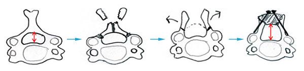 椎弓形成術:後方からの手術