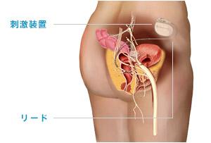 仙骨神経刺激療法(SNM)による便失禁の症状改善