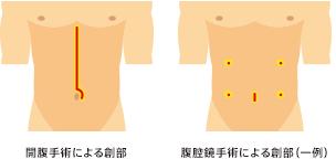 腹腔鏡手術とは?