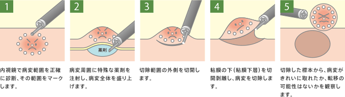 ESD(内視鏡的粘膜下層剥離術)